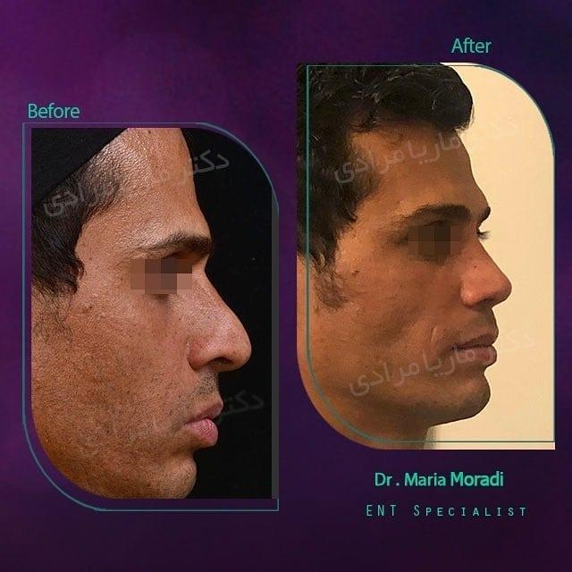 نمونه قبل و بعد جراحی بینی
