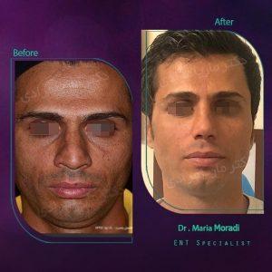 نمونه جراحی بینی مراجعه کننده آقا توسط دکتر اصحاب یمین