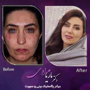 نمونه جراحی پلاستیک بینی و صورت