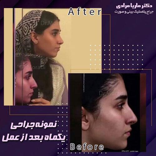 نمونه جراحی یکماه بعد از عمل