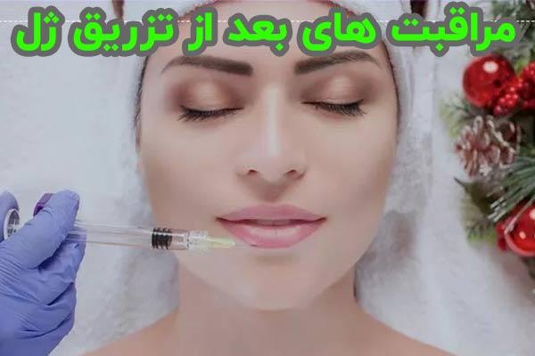 مراقبت های بعد از تزریق ژل